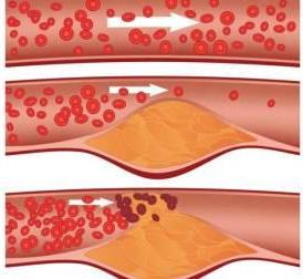 грейпфрут от плохого холестерина