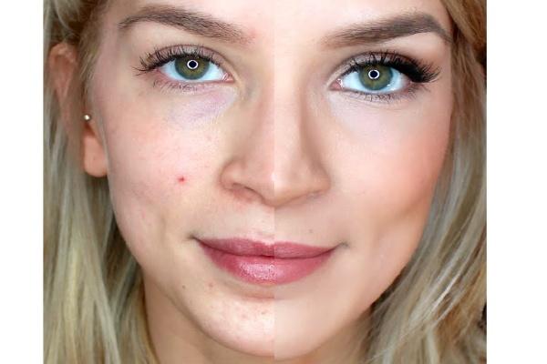 Правильный макияж для кожи с несовершенствами.