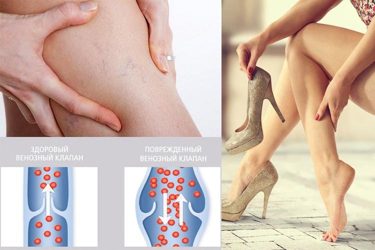 Варикоз: профилактика и лечение доступными методами